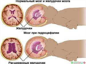 Асимметрия желудочков мозга: что это такое, почему возникает, на сколько опасно, диагностика и лечение