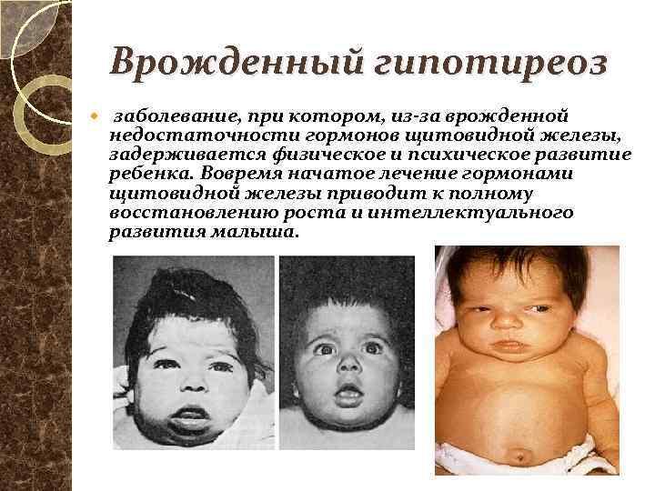 Врождённый гипотиреоз: что такое, классификация, причины, 8 симптомов, видео