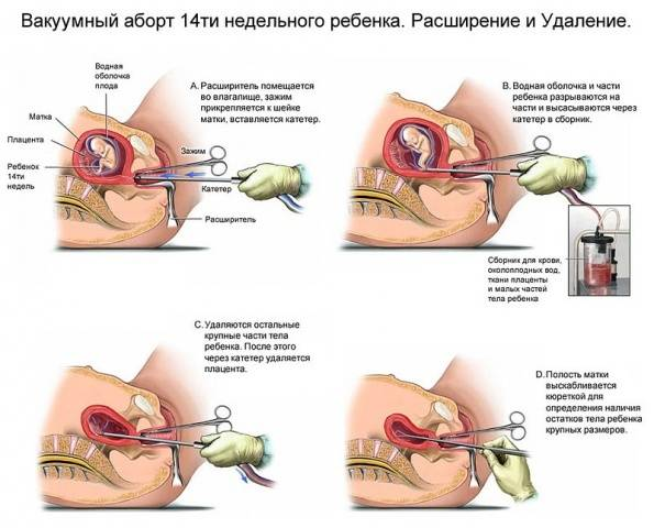 Выделения после выскабливания полости матки (чистки): могут ли быть, сколько идут