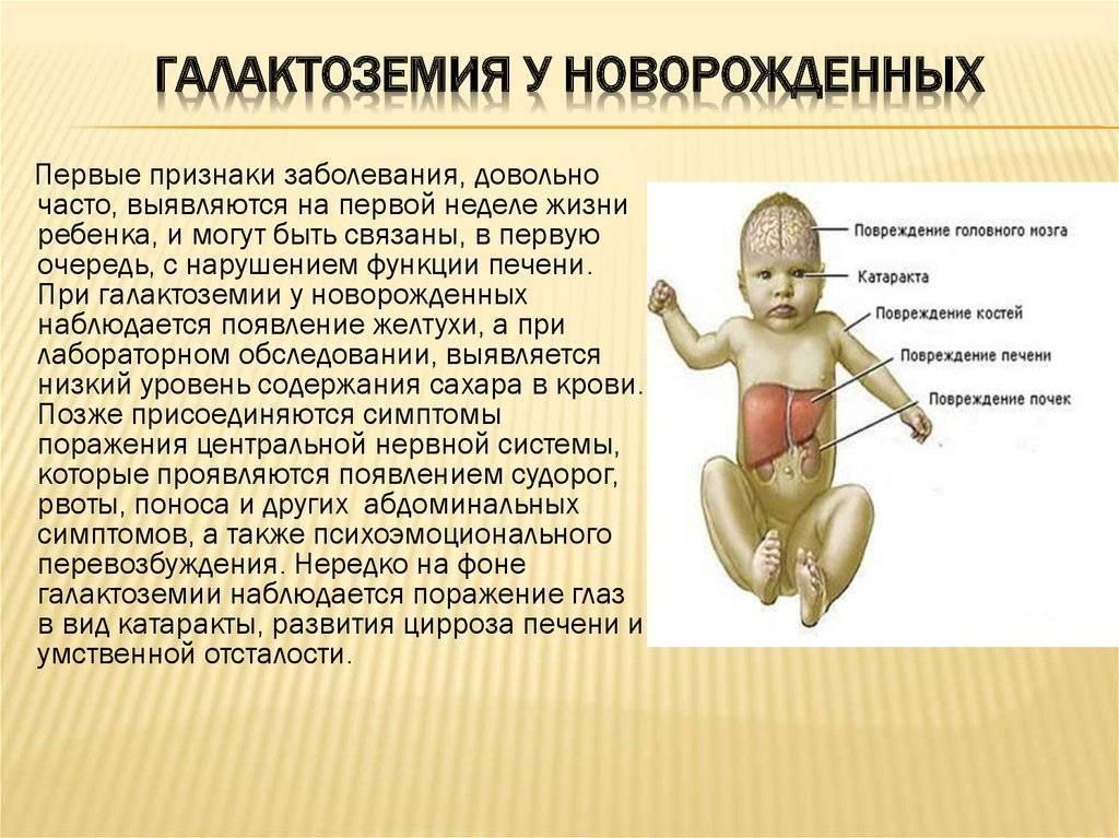 Как развивается галактоземия у детей и как проводится лечение галактоземии у детей: профилактика и питание при галктоземии у детей. основные симптомы галактоземии у детей