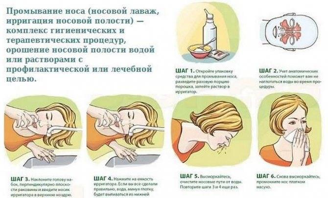Как промыть нос ребенку: простые советы