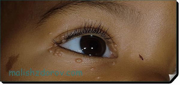 Моллюск на коже у ребенка: причины возникновения и лечение