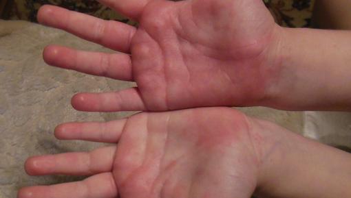 Как лечить красные шелушащиеся пятна у ребенка?