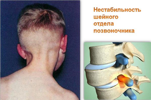 Нестабильность шейного отдела позвоночника у детей - твой суставчик