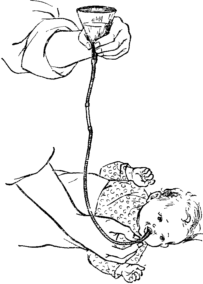Как правильно промыть желудок ребенку в домашних условиях. промывание желудка у детей - медицина для тебя