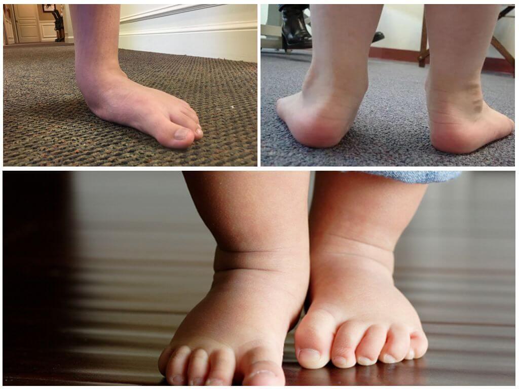 Вальгусная деформация стопы у детей (лечение, массаж, упражнения)