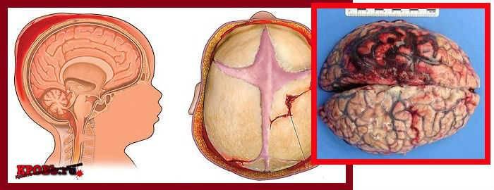 Кровоизлияние в мозг у новорожденного: причины и последствия для недоношенных детей, как лечить кровоизлияние в желудочки головного мозга
