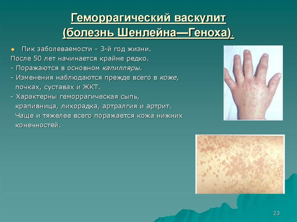 Какие осложнения могут возникнуть при геморрагическом васкулите у детей? прогноз для жизни ребенка