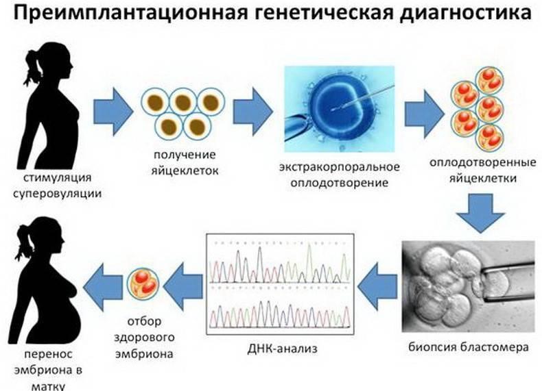 Пгд при эко – пгд эмбриона - это метод, позволяющий проверить эмбрион на генетические нарушения до переноса в полость матки    эко-блог