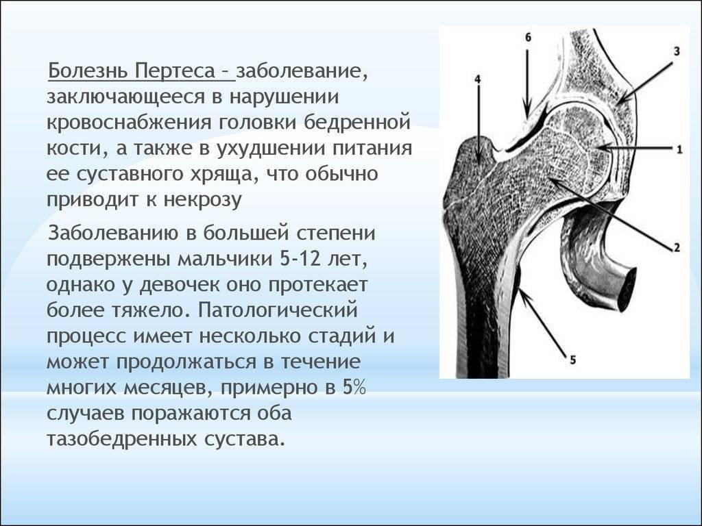 Болезнь пертеса (остеохондропатия тазобедренного сустава) у детей: причины и симптомы заболевания, принципы лечения - все о суставах