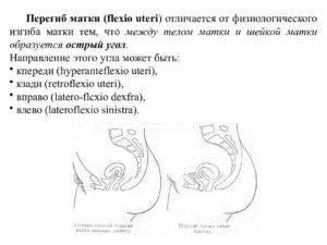 Может ли седловидная матка повлиять на зачатие?