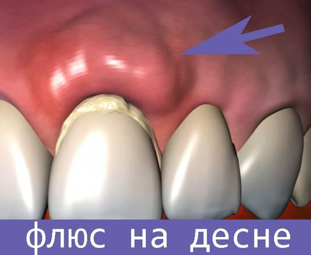 Шишка на десне у ребенка - фото гнойника: что делать с нарывом? | spacream.ru