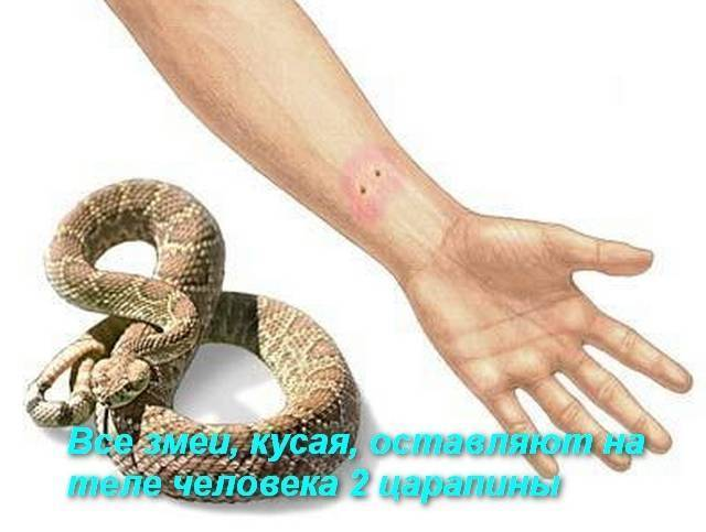 Что делать, если ребенка укусила гадюка: первая помощь при укусе змеи | симптомы | vpolozhenii.com
