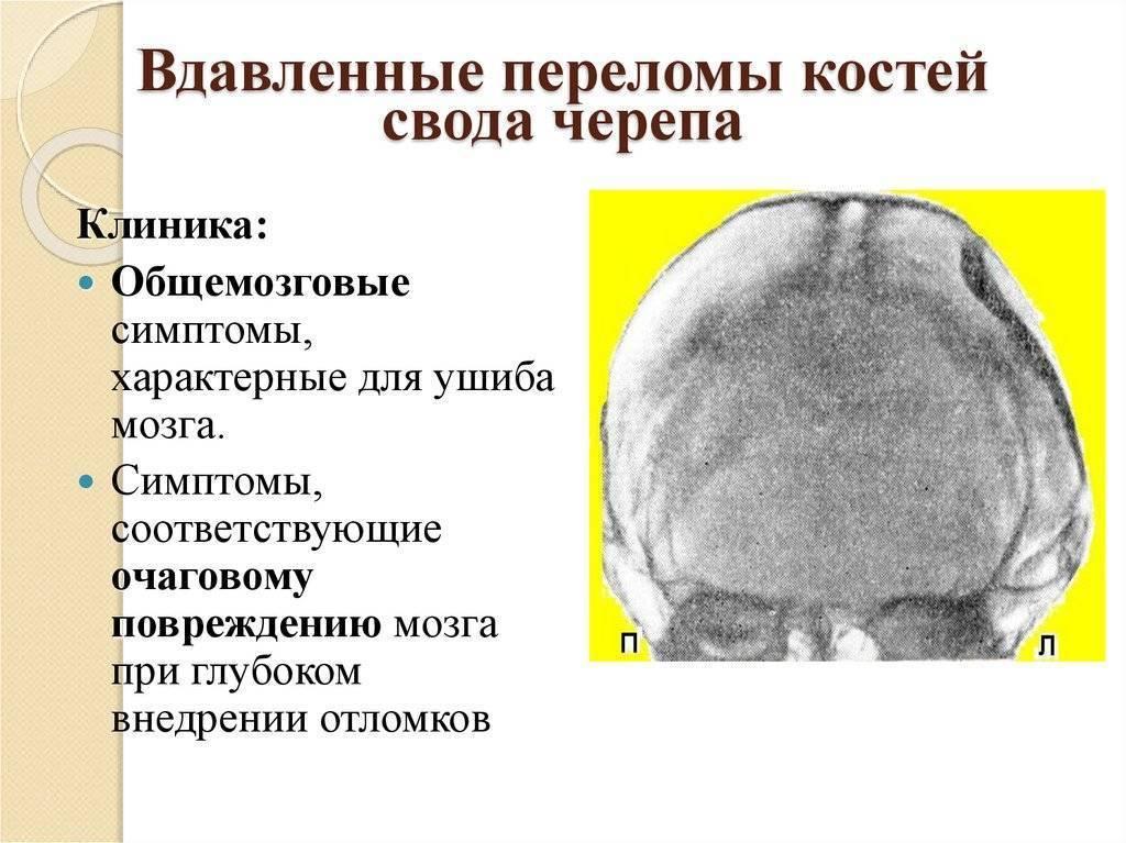 Перелом лобной кости у ребенка симптомы - wikiortoped.ru
