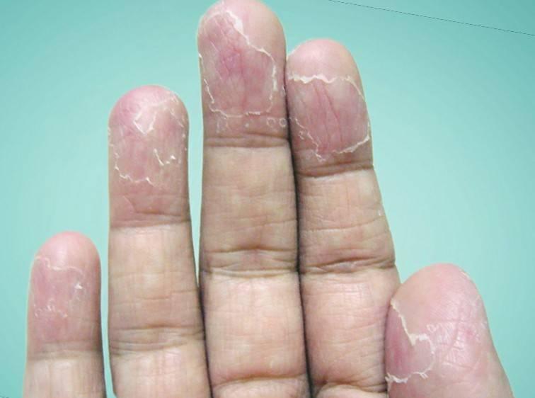 Почему облазит кожа на пальцах рук и ног у ребенка и взрослого