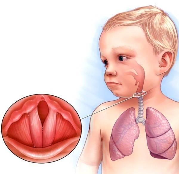 Хрипы в горле при дыхании, лечение хрипоты (как и чем) у ребенка