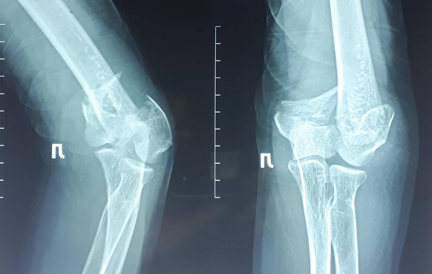 Лечение перелома латерального мыщелка плечевой кости у детей при помощи биодеградируемых материалов