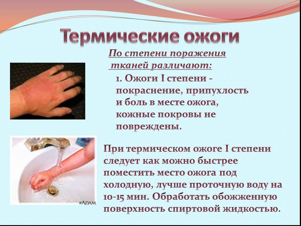 Ожог у ребенка: лечение термических повреждений разной степени и первая помощь в домашних условиях