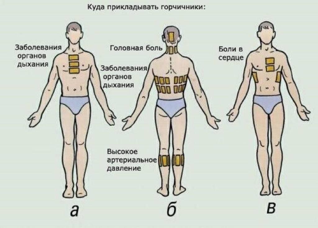 Как ставить горчичники правильно на спину и грудь взрослому или ребенку - инструкция и противопоказания