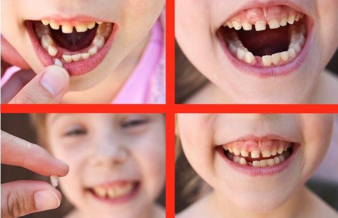 Молочные зубы у взрослых: удалять или сохранять - много зубов
