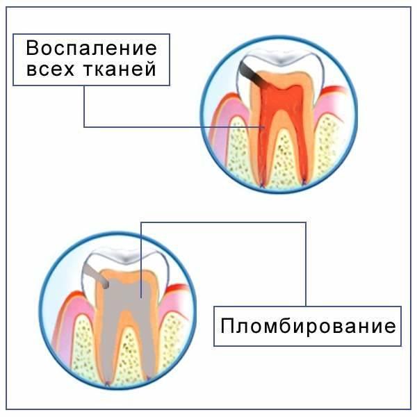 Что выбрать фторирование или серебрение молочных зубов детям. процедура серебрения молочных зубов у детей при кариесе: преимущества метода и альтернативы