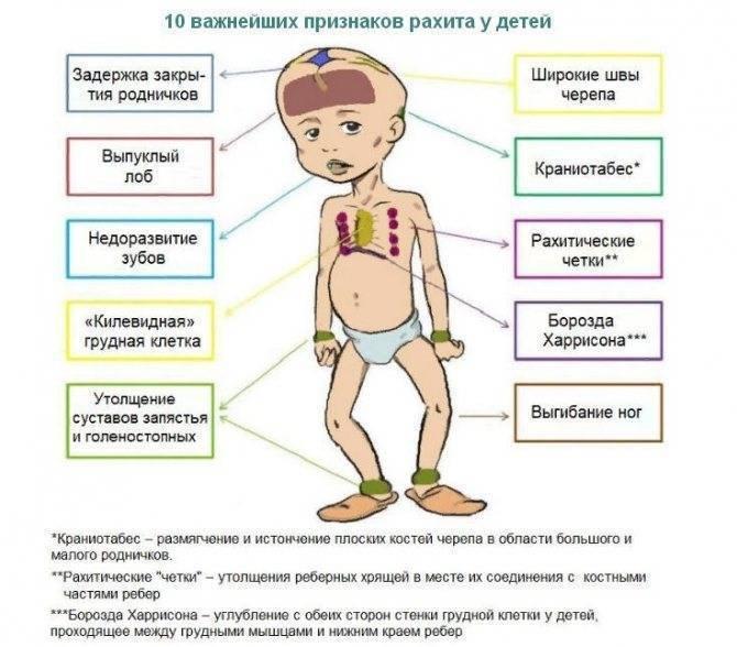 Признаки и профилактика рахита у грудничка