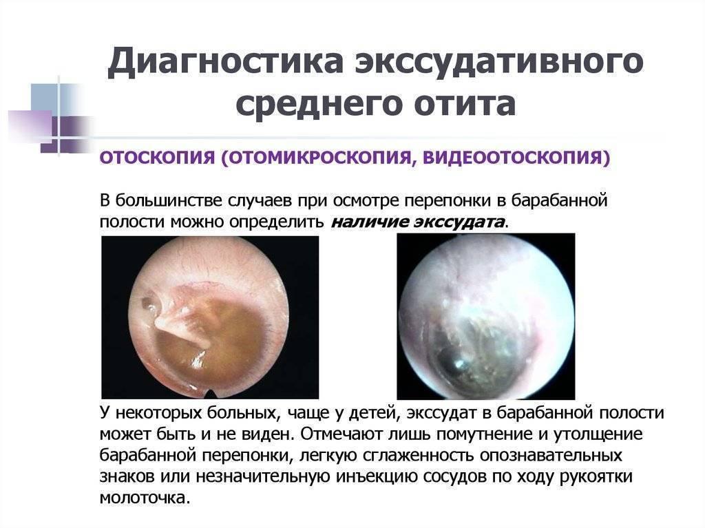 Лечение катарального отита у детей и взрослых