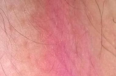 Сыпь и раздражение в паху у ребенка: покраснение, зуд и признаки аллергии в интимной зоне у девочек и мальчиков.