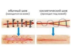 Косметические швы после родов | медик03