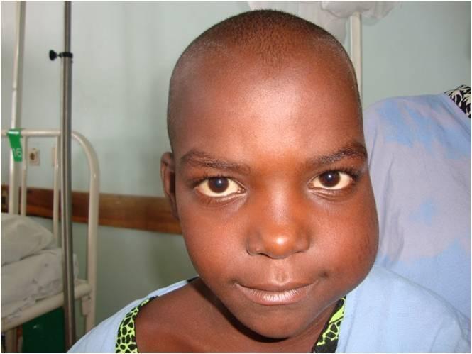 Лимфома у детей: симптомы и лечение, причины возникновения заболевания   заболевания   vpolozhenii.com