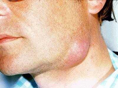 Воспаление лимфоузлов при ветрянке: локализация и лечение
