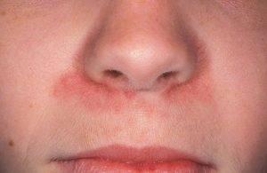 Герпес в носу у ребенка фото