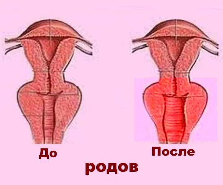 Интимное восстановление после родов