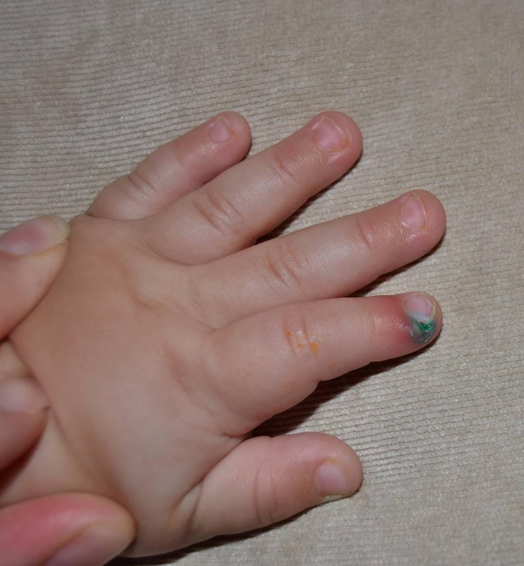 Нарыв на пальчике у грудничка