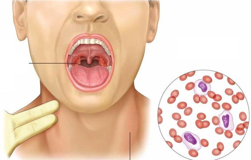 Как лечить стоматит на миндалинах в домашних условиях?