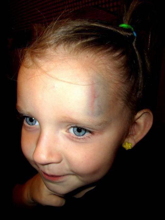 Что делать, если ребенок ударился и набил шишку на лбу: чем мазать, когда не проходит гематома? шишка на лбу от удара: что делать? как лечить? рассасывается шишка на лбу. - зубной врач