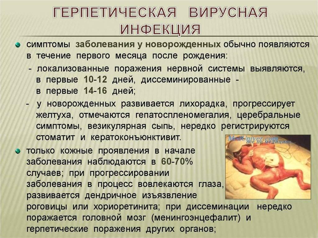 Острый герпетический стоматит, симптомы и лечение.