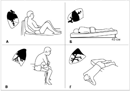 Упражнения при кашле для отхождения мокроты
