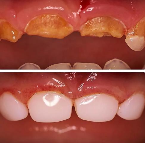 Как лечить бутылочный кариес молочных зубов?