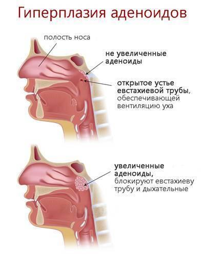 Удаление аденоидов у детей: как проходит операция