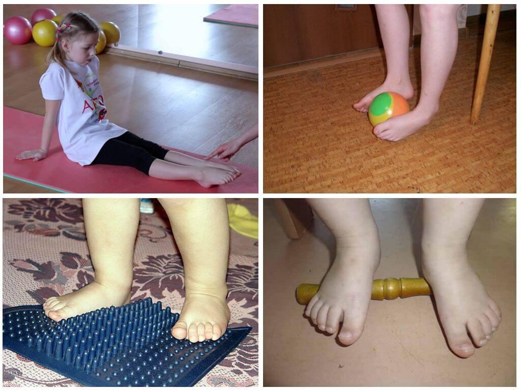 Варусная деформация стопы у детей: лечение, массаж, упражнения, стельки в обувь