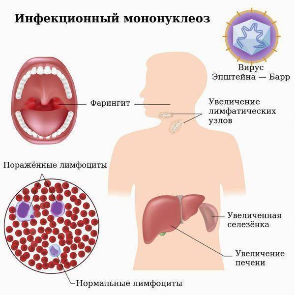 Энтеровирусные инфекции ????  - симптомы и лечение. журнал медикал