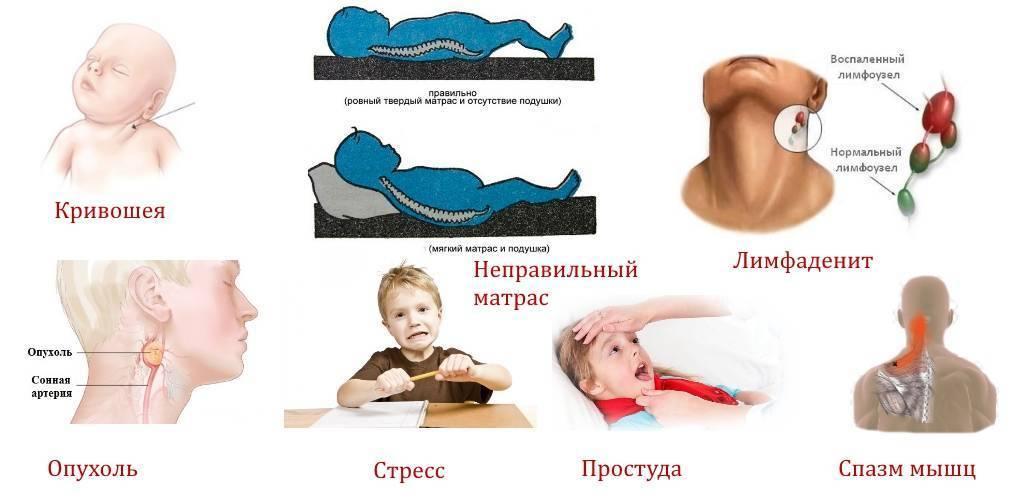 У ребенка болит шея сзади или с правой, левой стороны, он не может поворачивать голову - что делать? | симптомы | vpolozhenii.com