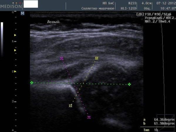 Узи тазобедренных суставов у грудничков: таблица с показателями нормы углов