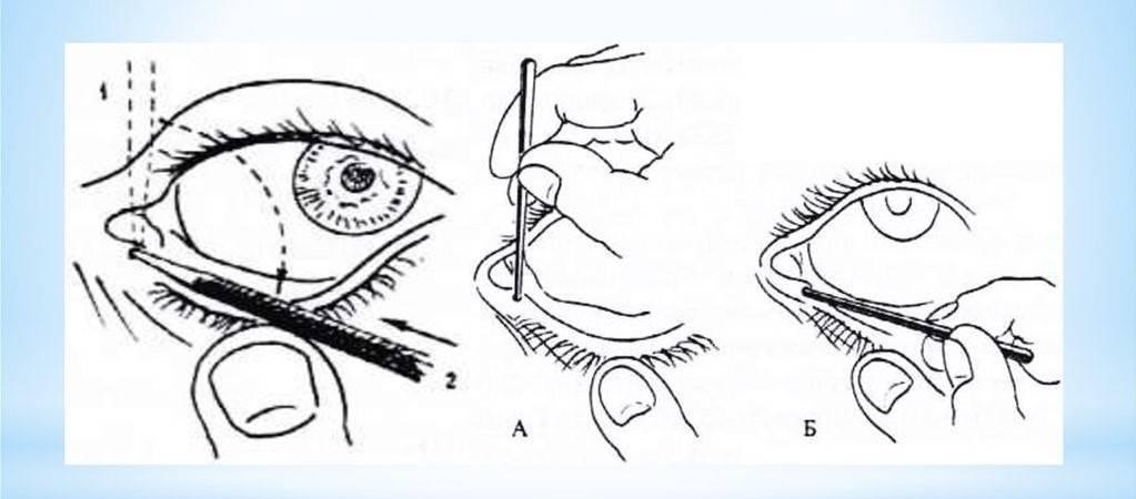 Зондирование слезного канала у новорожденных: показания к процедуре при дакриоцистите, послеоперационной уход