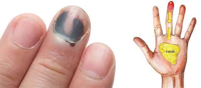 Нарыв на пальце возле ногтя на руке