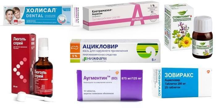Лечение стоматита у взрослых в домашних условиях народными средствами