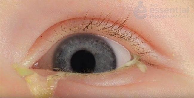 """Почему закисают глаза у взрослого? - """"здоровое око"""""""