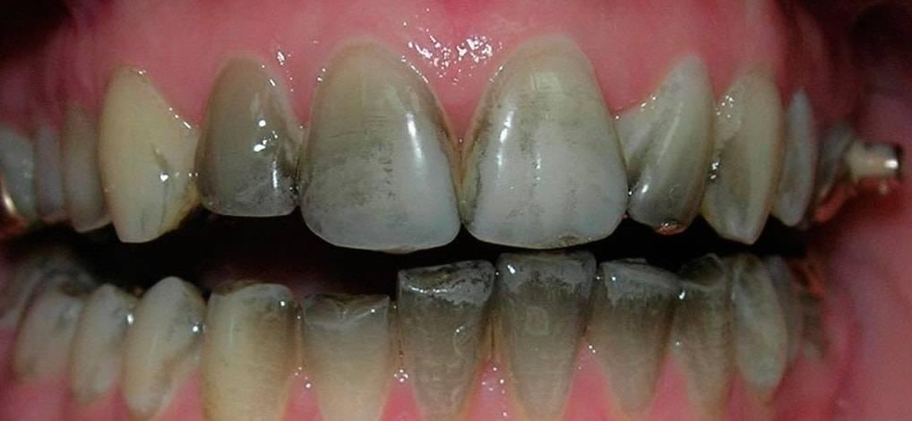 Пигментные пятна на зубах как избавиться у стоматолога, в домашних условиях