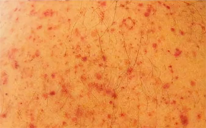 Геморрагический васкулит фото симптомы лечение мази диета